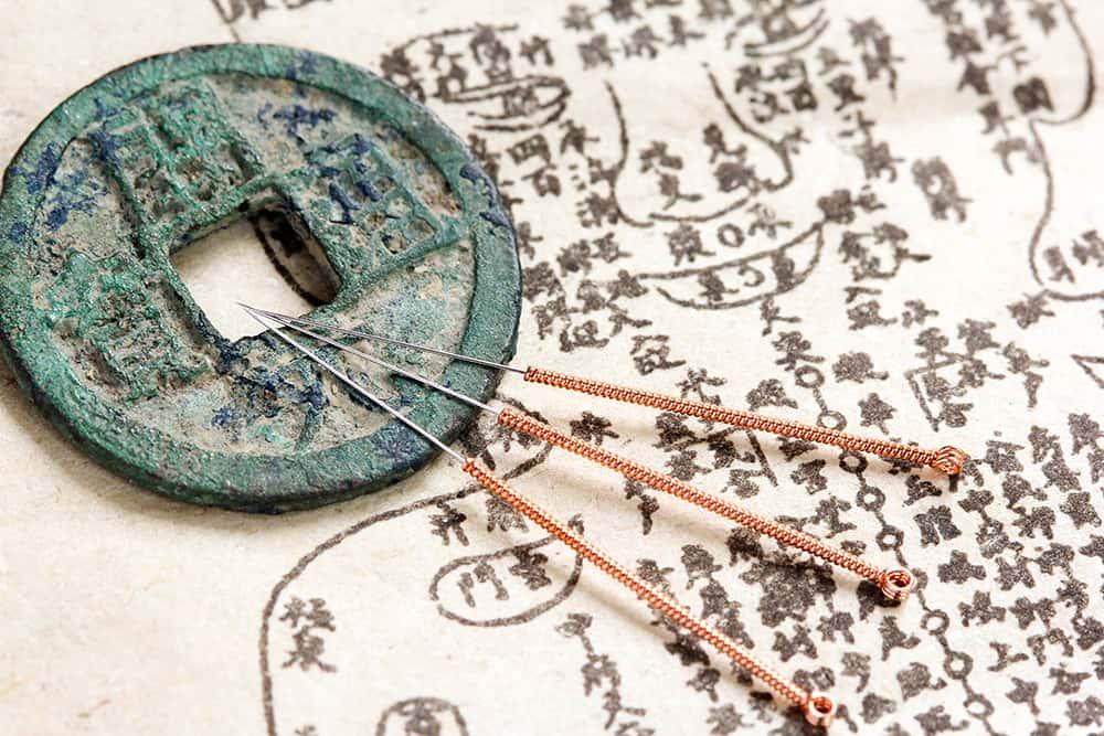 Acupuncture: tous ses bienfaits pour la santé