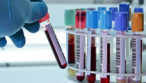 Laboratoires de biologie médicale (LBM) : droit de propriété des sites d'exercice