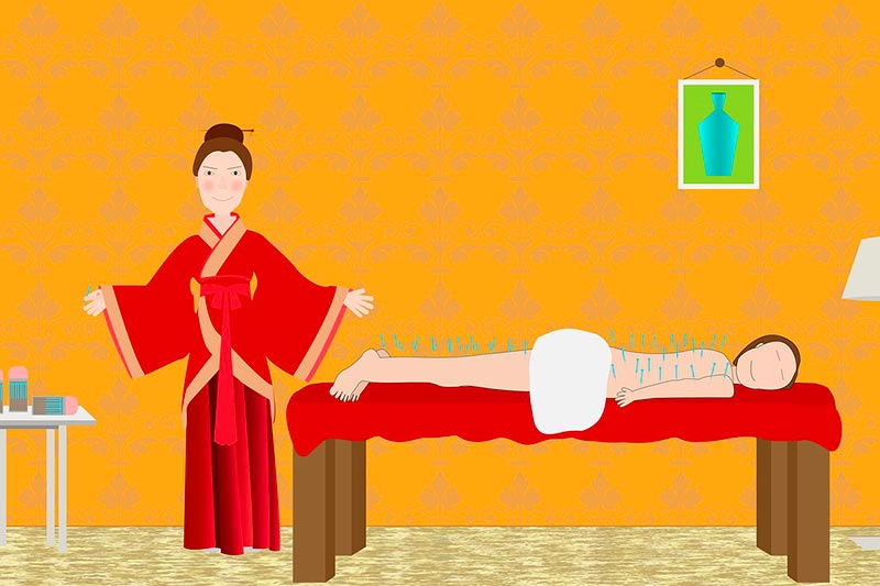 enceinte acupuncture