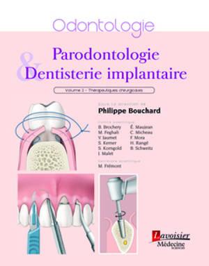 Parodontologie & dentisterie implantaire. Volume 2, Thérapeutiques chirurgicales