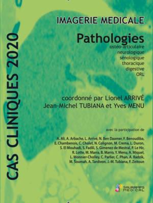 Imagerie médicale : pathologies ostéo-articulaire, neurologique, sénologique, thoracique, digestive, ORL : cas clinique 2020