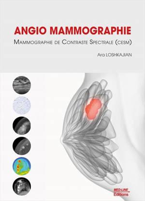 Angio mammographie : mammographie de contraste spectrale (CESM)