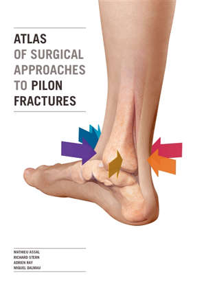 Atlas of surgical approaches to pilon fractures
