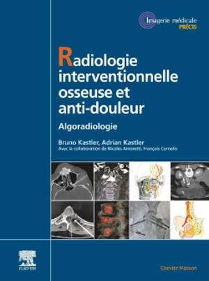 Radiologie interventionnelle osseuse et anti-douleur : algoradiologie