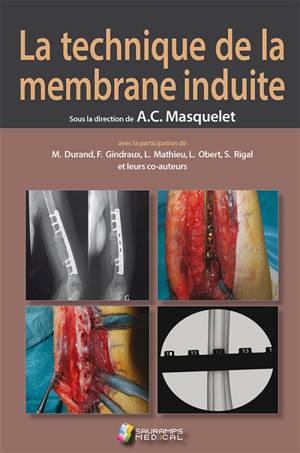 La technique de la membrane induite : principes, pratiques et perspectives