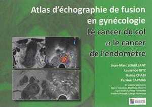Atlas d'échographie de fusion en gynécologie : le cancer du col et le cancer de l'endomètre