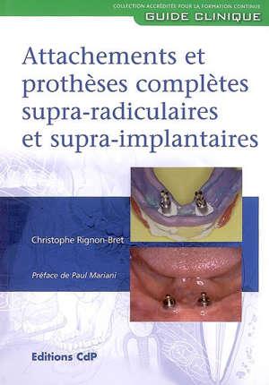 Attachements et prothèses complètes supra-radiculaires et supra-implantaires