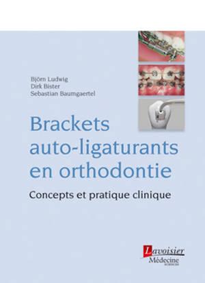 Brackets auto-ligaturants en orthodontie : concepts et pratique clinique