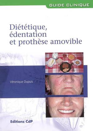 Diététique, édentation et prothèse amovible