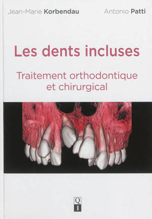 Les dents incluses : traitement orthodontique et chirurgical