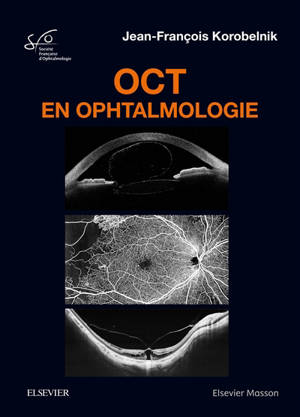OCT en ophtalmologie