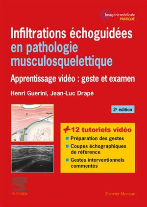 Infiltrations échoguidées en pathologie musculosquelettique : apprentissage vidéo : geste et examen