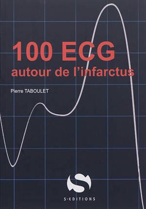 100 ECG infarctus