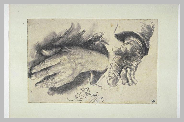 Deux études de mains, dont une porte un pansement