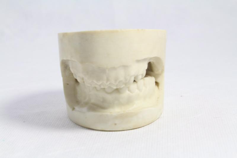 MARTIN Claude (praticien, concepteur) : moulage dentaire