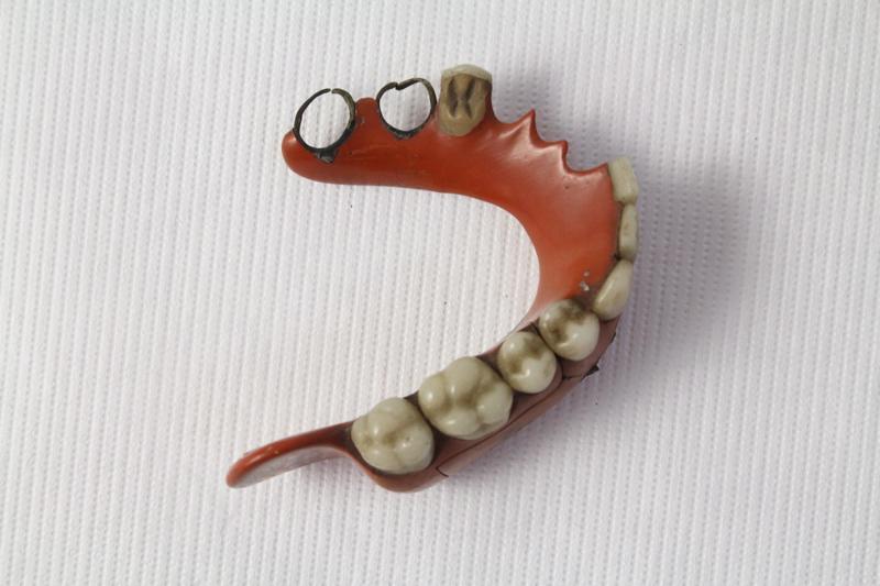 MARTIN Claude (praticien, concepteur) : Prothèse dentaire B.
