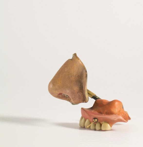 anonyme : prothèse
