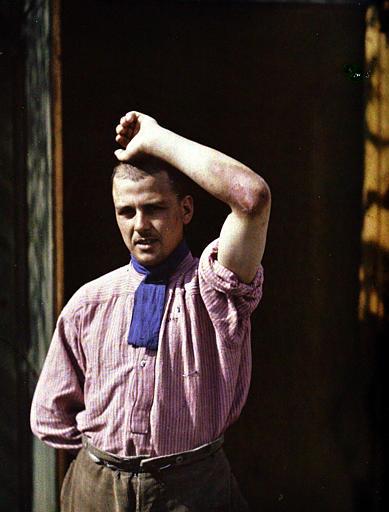 Soldat du 99ème R.I. intoxiqué le 23 mars 1918 : phlyctène et érythème du coude gauche ; photographie médicale