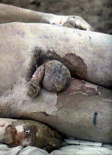 Soldat du 22ème R.I. : organes génitaux et cuisses hypérites et graves lésions de brûlures de la verge et du scrotum, intoxiqué le 18 mars