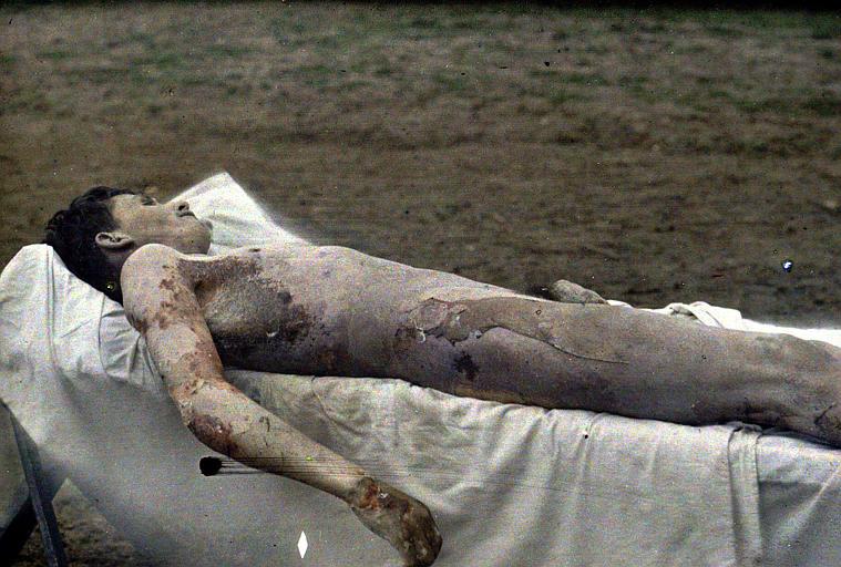 Autopsie d'un soldat du 99ème R.I. intoxiqué le 23 mars 1918, décédé de bronco-pneumonie le 31 mars 1918 : le corps en entier