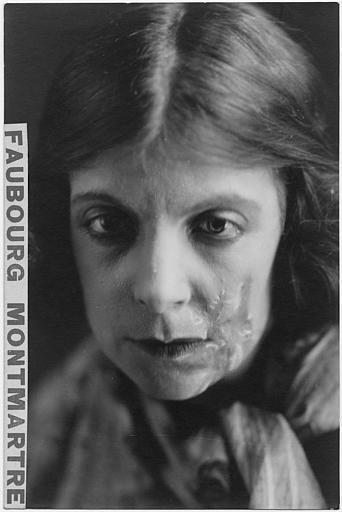 Portrait de Céline James défigurée par une cicatrice dans 'Faubourg Montmatre' de Charles Burget