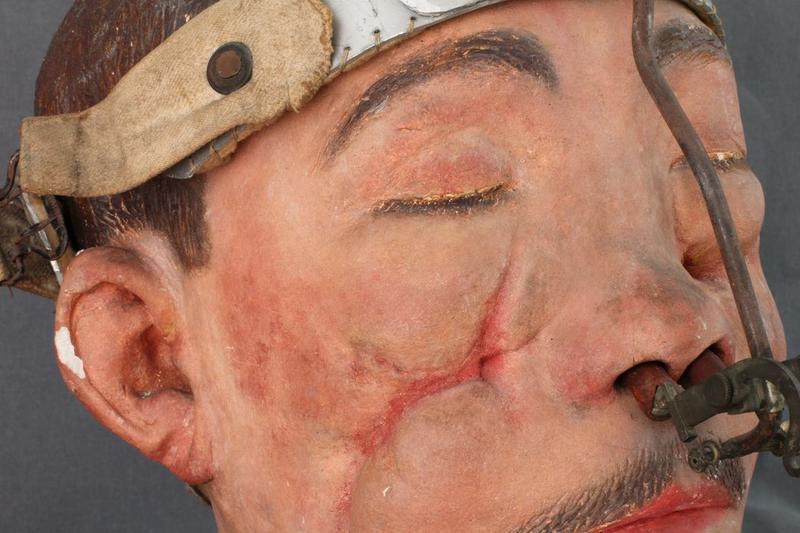 Moulage: gueule cassée, vue partielle