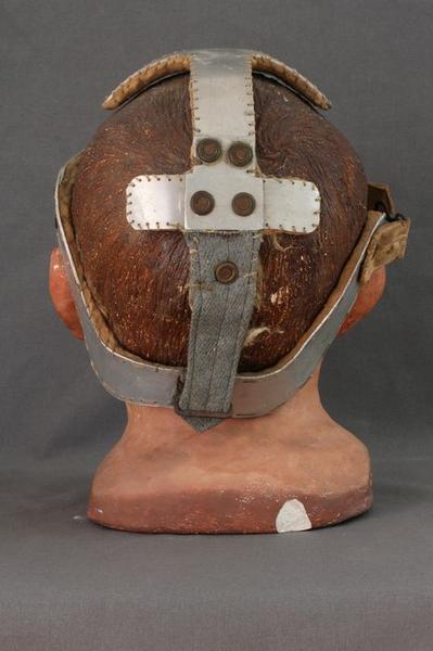 Moulage: gueule cassée, vue générale de l'arrière de la tête