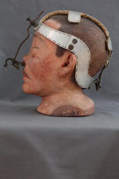 Moulage: gueule cassée, vue générale, profil gauche