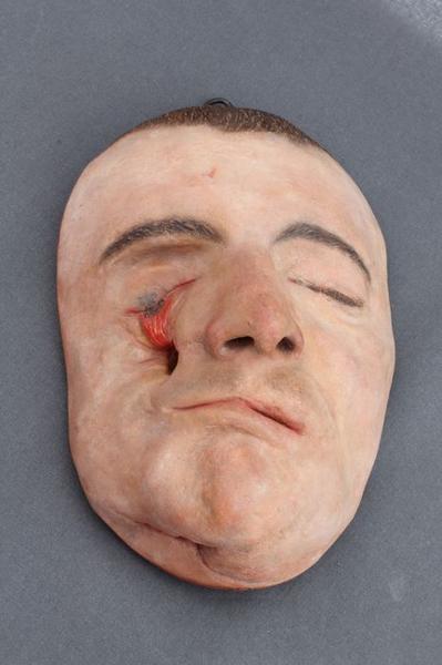 Moulage: gueule cassée, vue générale
