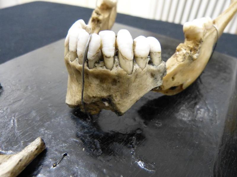 Moulage: fractures par projectile de guerre, vue partielle