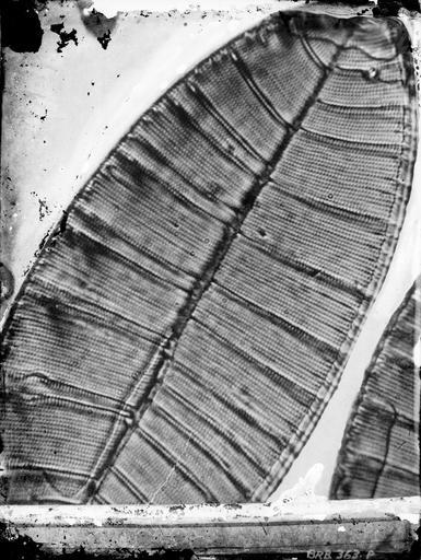 Etude microphotographique d'une diatomée