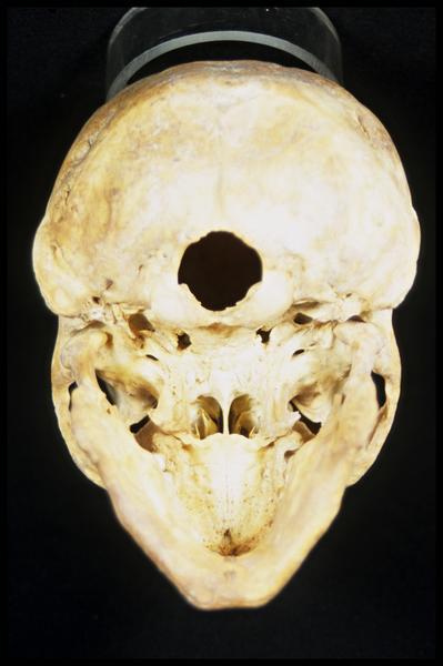 Vue de dessus d'un crâne humain (CNRAS).