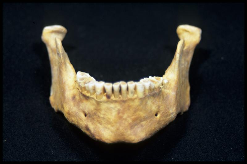 Vue de face d'une machoire inférieure (CNRAS).
