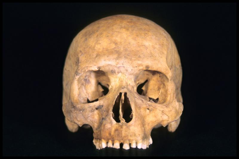 Vue de face du moulage d'un crâne humain (CNRAS).