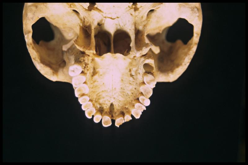 Vue de dessus du moulage de la machoire supérieure d'un crâne humain (CNRAS).