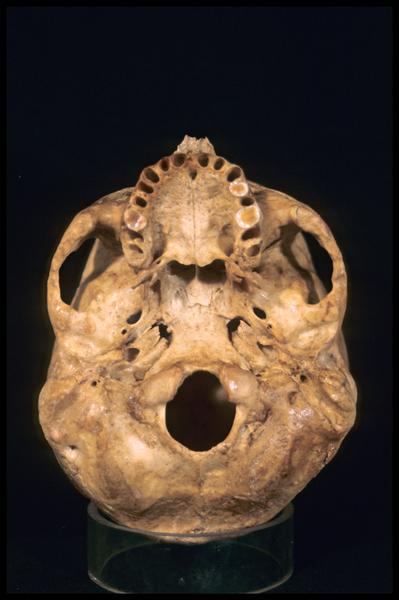 Vue de dessous d'un crâne humain (CNRAS).