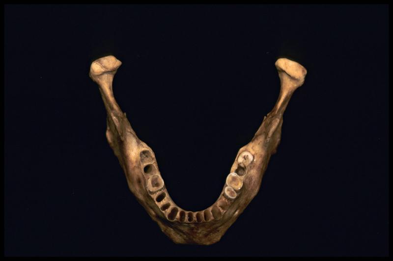 Vue de dessus de la machoire inférieure d'un crâne humain (CNRAS).