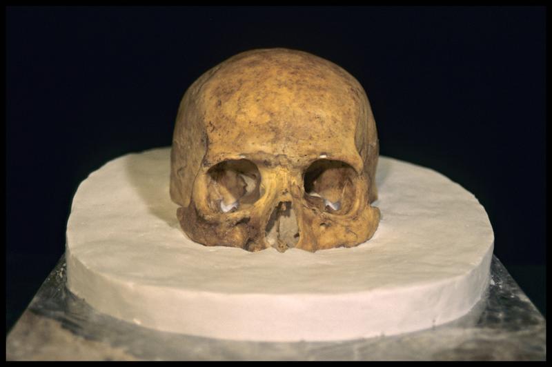 Vue de face de la prise d'empreinte pour le moulage d'un crâne humain (CNRAS).