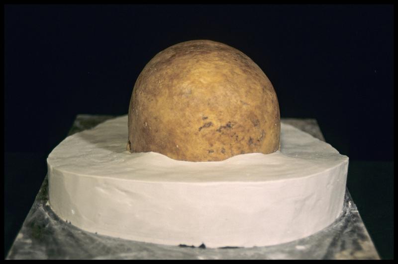 Vue de derrière de la prise d'empreinte pour le moulage d'un crâne humain (CNRAS).