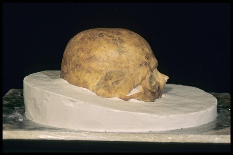 Vue du profil droit de la prise d'empreinte pour le moulage d'un crâne humain (CNRAS).
