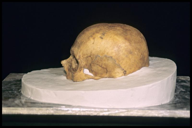 Vue du profil gauche de la prise d'empreinte pour le moulage d'un crâne humain (CNRAS).