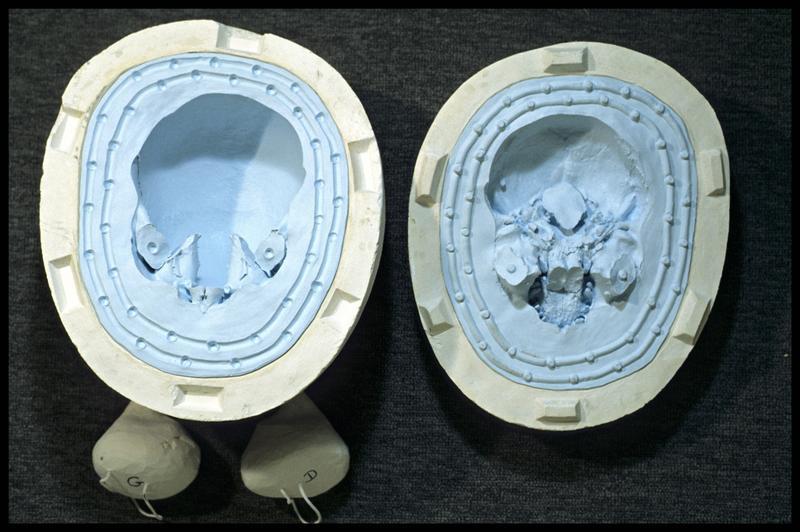 Vue des moules d'un crâne humain (CNRAS).
