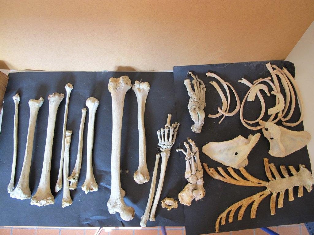 Ensemble (71) de la collection de membres humains