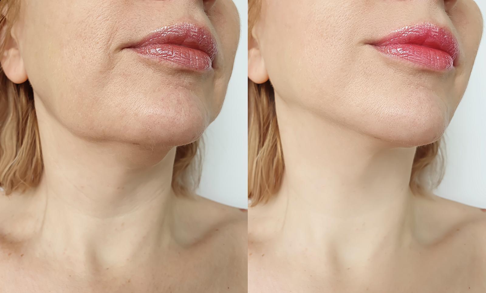 avant et après jawline