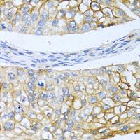 BMP4 Polyclonal Antibody (CAB11315)
