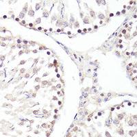 TWIST1 Polyclonal Antibody (CAB15596)