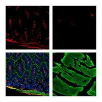 alpha-Smooth Muscle Actin (D4K9N) XP® Rabbit mAb (Alexa Fluor® 647 Conjugate)