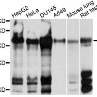 CPD Polyclonal Antibody (CAB10208)